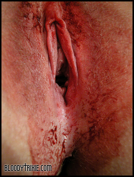 Issues large dildo blood